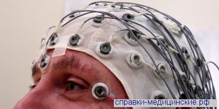 ЭЭГ- энцефалограмма с расшифровкой врача 1000 руб