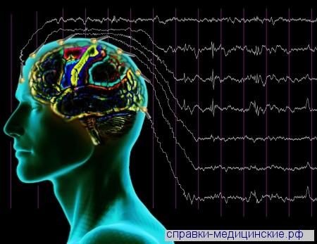 Энцефалограмма головного мозга маршала